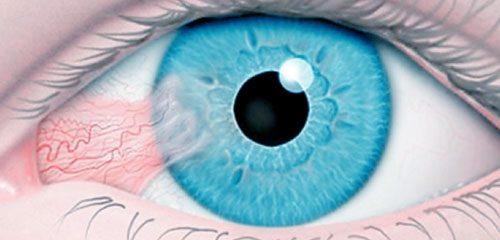 Cirurgia de pterígio