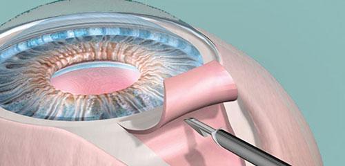 Cirurgia para glaucoma (trabeculectomia)