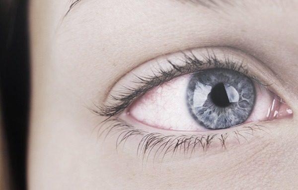 5 causas de vermelhidão nos olhos