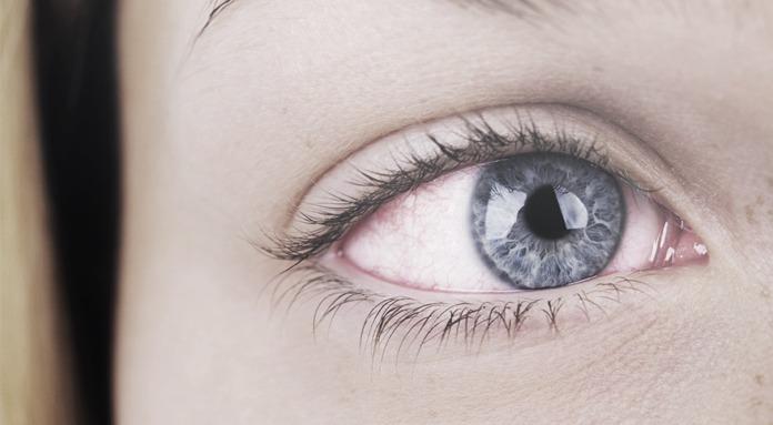 Vermelhidão nos olhos - Visão Hospital Oftalmológico