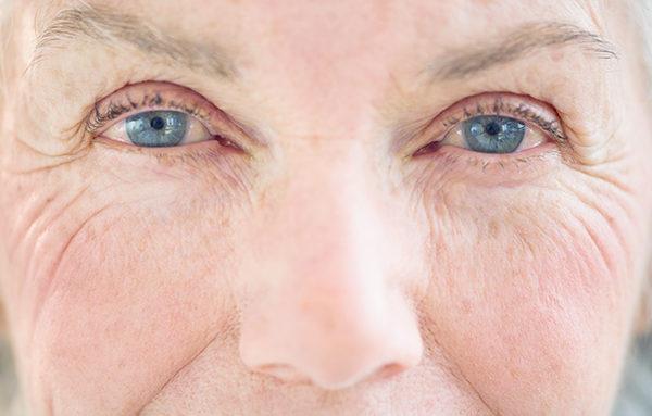 Olho seco: o que é, sintomas e tratamento